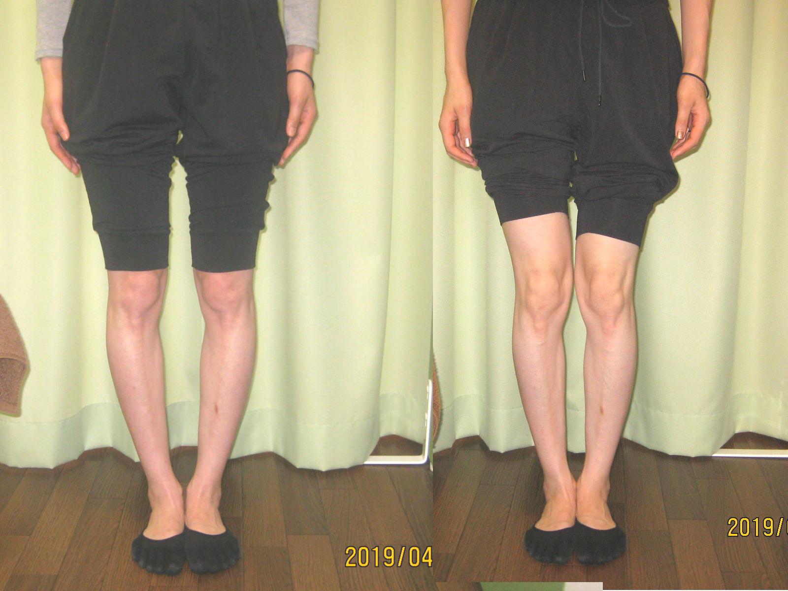 O脚矯正3